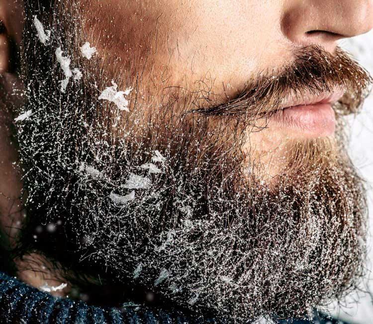 barbe casposa
